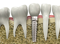 Dental Implants Lakewood Colorado