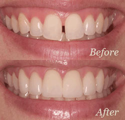 Dental Veneers Treatments in Lakewood Co